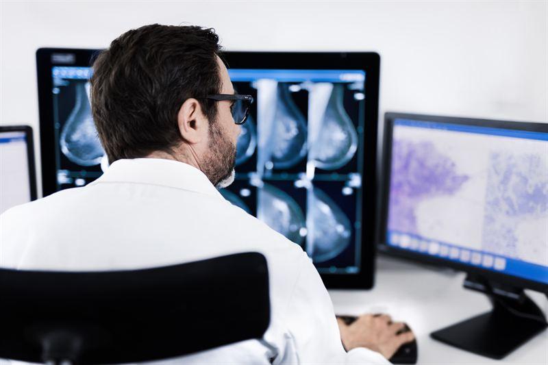 Sectra får order på helhetslösning för medicinsk bildhantering av cancercentrum i USA